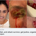 CAIR-NY Calls for Hate Crime Probe After Asian-American Muslim Attacked with Acid in Nassau County